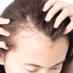 Losing Hair Earlier Than Expected? Revialage Regrowth Essential 2020 Review